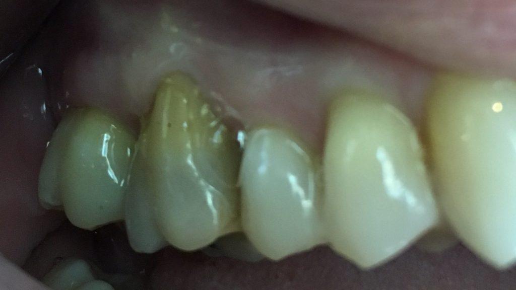 Gum Surgery – Case 2
