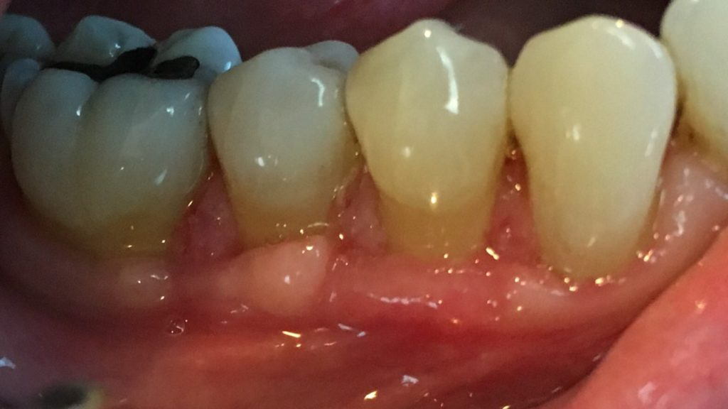 Three Months After Gum Graft