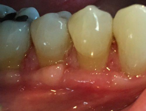 Gum Surgery – Case 4