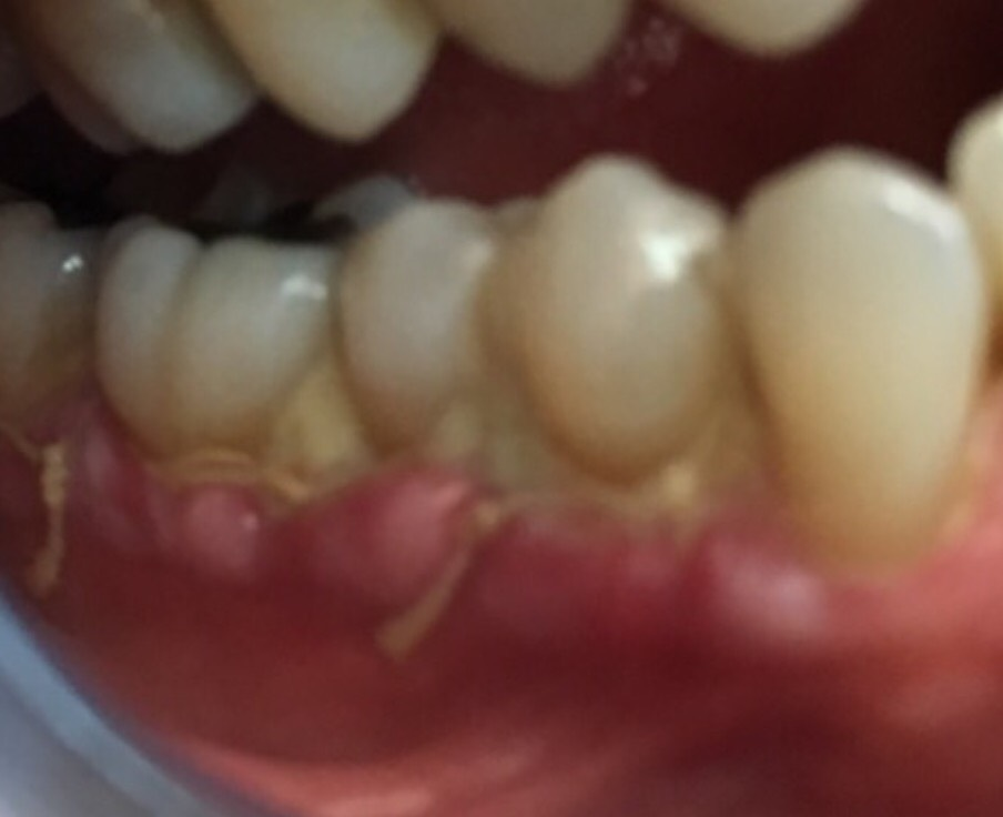 One Week After Gum Graft
