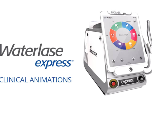 New Waterlase Express For Patients