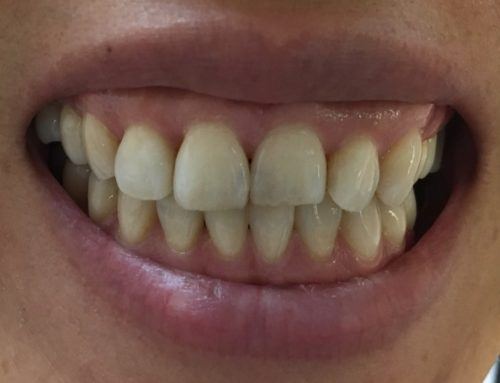 3 New One-Day Cases With Composite Veneers & Fillings
